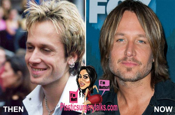 Keith Urban Plastic Surgery
