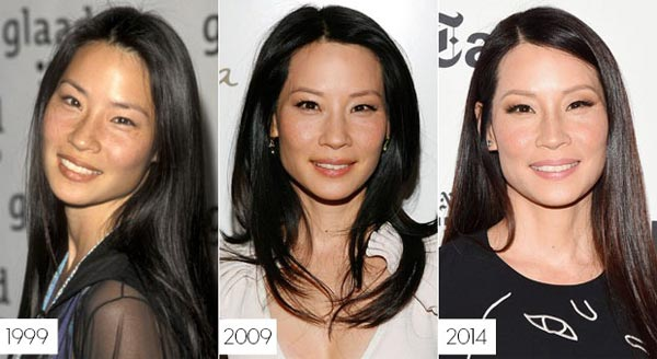 Lucy Liu Cosmetic Surgery