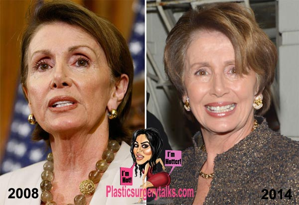 Nancy Pelosi Plastic Surgery Before & After
