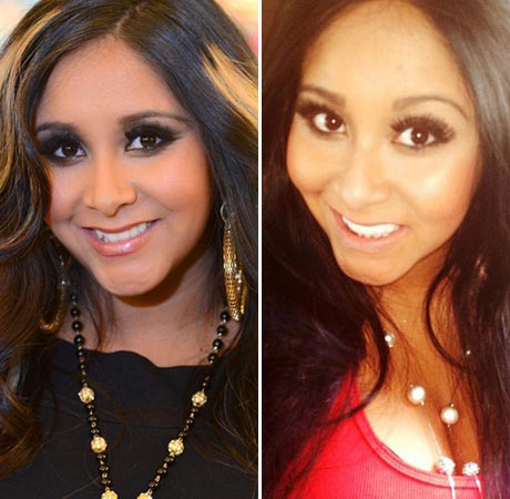 Snooki Plastic Surgery Before & After Picture