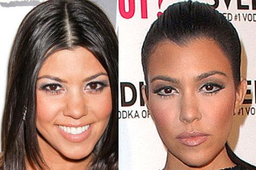 Kourtney Kardashian Nose Job