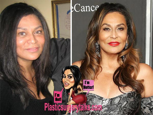 Tina Knowles Plastic Surgery