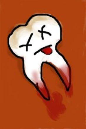 dental-cavity-causes-death
