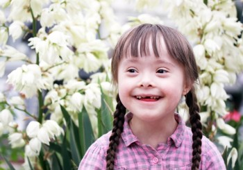 A little girl with down syndrome