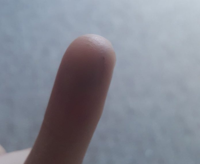 My healed finger with magnet implant