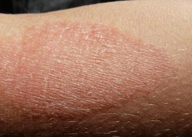 atopic-dermatitis-image-credit-g-steph-rocket-2015