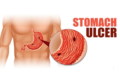 Suffering From Stomach Ulcer Infection- Avoid These 7 Things