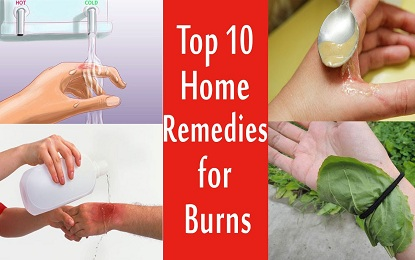 Did You Know These 10 Natural Home Remedies for the Treatment of Burns