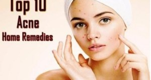 10 Natural Home Remedies for Acne Pimple Treatment