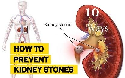 10 Effective Ways to Prevent Kidney Stones