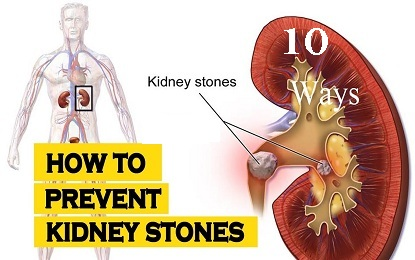 10 Effective Ways to Prevent Kidney Stones