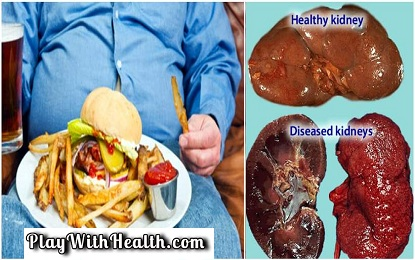 Top 6 Bad Habits That Can Cause Kidney Damage