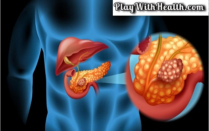 Top 8 Symptoms To Identify Pancreatic Cancer