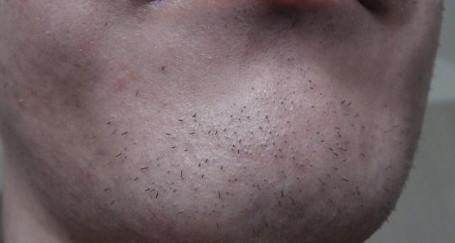 脱毛後のアゴ髭