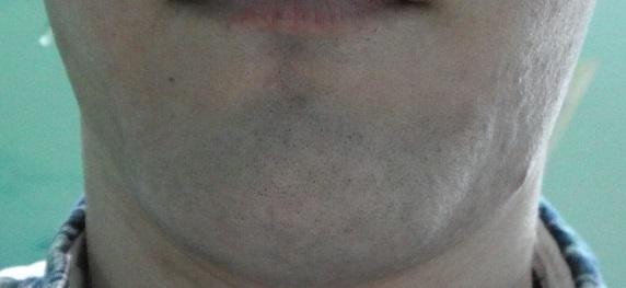 脱毛後の写真
