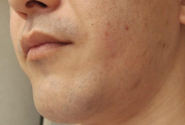 ゴリラクリニックで脱毛した直後の肌の状態