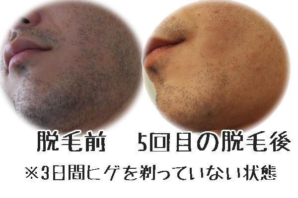 メンズリゼ広島店での初めてのひげ脱毛!痛さや脱毛時間はこんな感じ!
