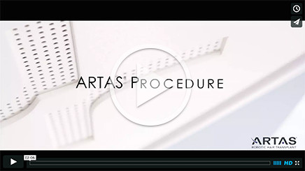 video_artas_hair_transplant_procedure