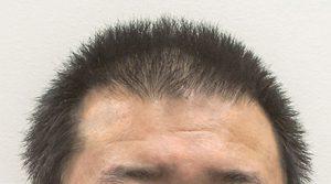 artas-hair-transplant-surgery-original-haircut2