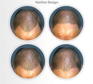 hairline-design
