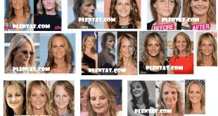 Helen Hunt Plastic Surgery Before And After (1)