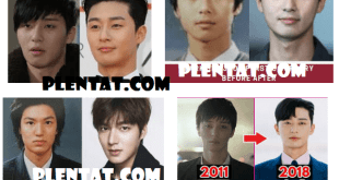 Park Seo Joon Plastic Surgery Before And After