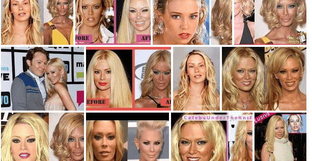 Jenna Jameson Before Plastic Surgery