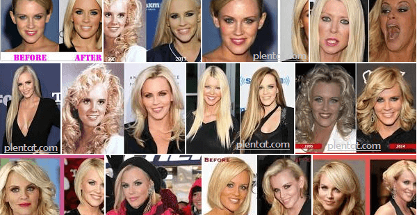 Jenny Mccarthy Before Plastic Surgery After Nose Job Face Lift