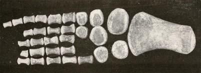 'Ogmodirus' flipper (from Williston & Moodeie, 1917)