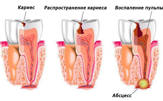 Можно ли беременной анальгин при зубной