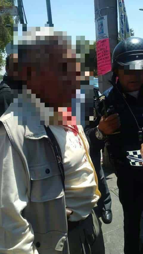 Exmilitar Silvano Williams Asaltante Muerto Balbuena Centro