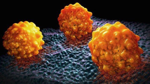 Gracias a estudio tratamientos genéticos contra la metástasi