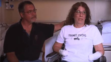 Por una infección transmitida por su perro le amputan piernas y brazos a una mujer