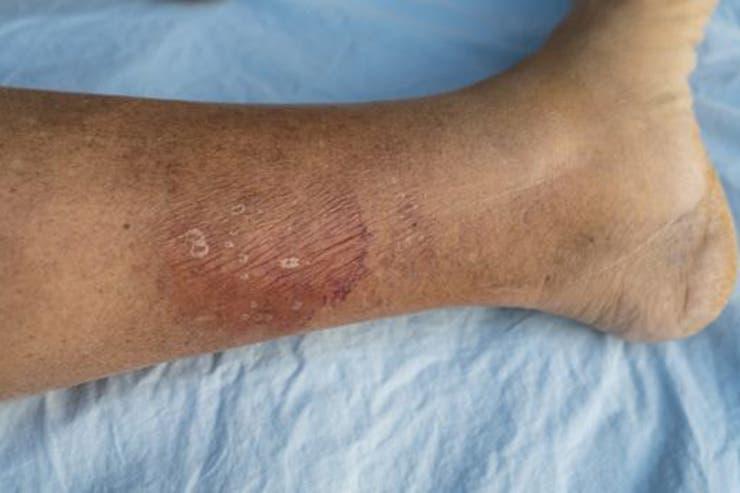 Septicemia: enfermedad que mata a más personas que el cáncer.