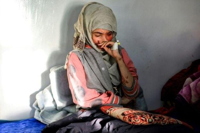 Ataque con ácido Yemen