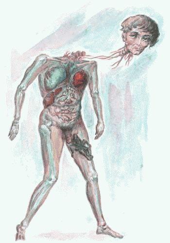 Рисунки людей с психическими отклонениями37