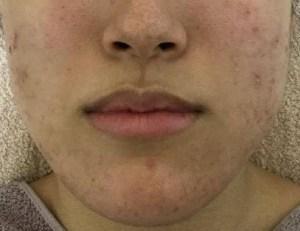 にきび肌始める前の肌