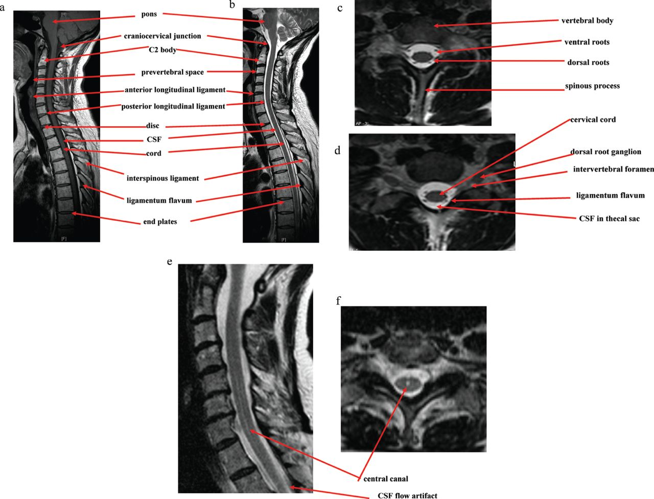 Normal Anatomy Of The Spinal Cord