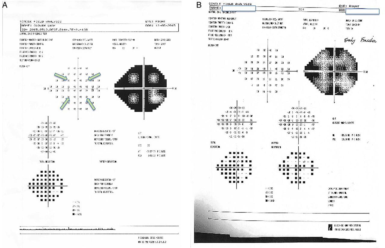 How To Interpret Visual Fields