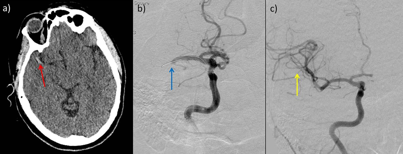Revolution In Acute Ischaemic Stroke Care A Practical
