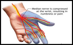 Hand wrist view of carpal tunnel syndrome