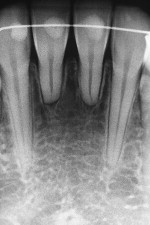 Short-root anomaly in an orthodontic patient