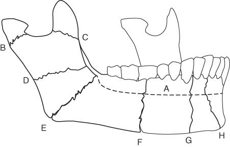 Diagrammatic illustration of Classification of mandibular fracture sites.