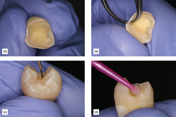 Photographs show research for prevention of subgingival margins with help of enamel coating over teeth of affected patient.