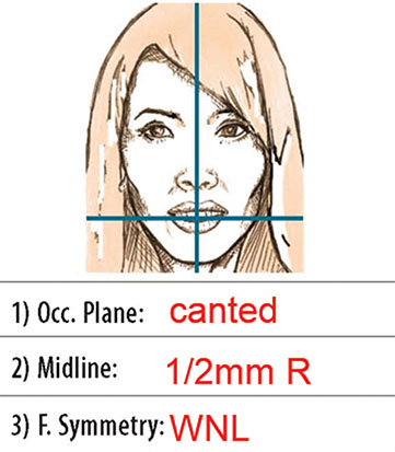 Diagram shows closed-up view of notes which is observed and recorded on diagnosis form which reads 1) Occ. Plane: canted; 2) Midline: 1/2mm R; and 3) F.Symmetry: WNL.