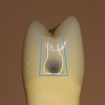 Photograph shows tooth with external outline of traditional geometric preparation is more time-consuming when compared with tooth-preserving outline of bonded composite preparation.