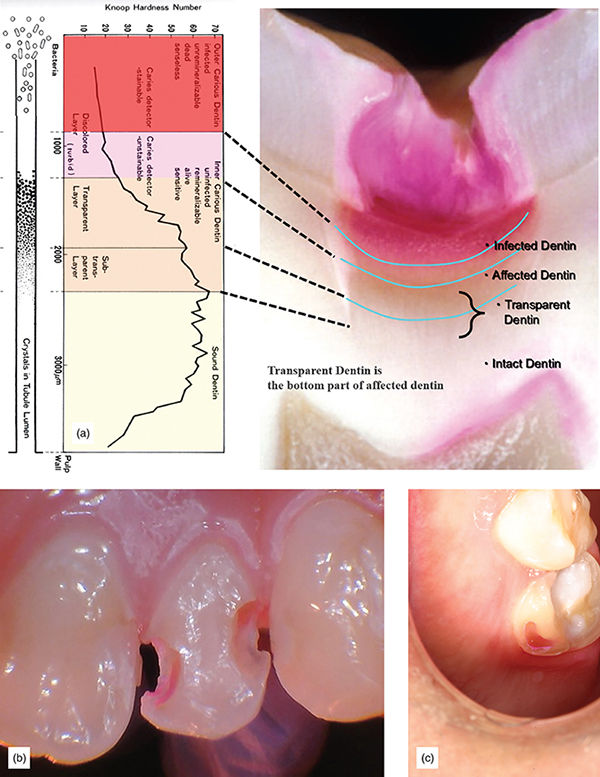 Photographs show a: caries layer with infected dentin, affected dentin, and transparent dentin; b: dentin which is stained red is affected and should be removed; and c: caries indicator used to uncover caries on tooth.