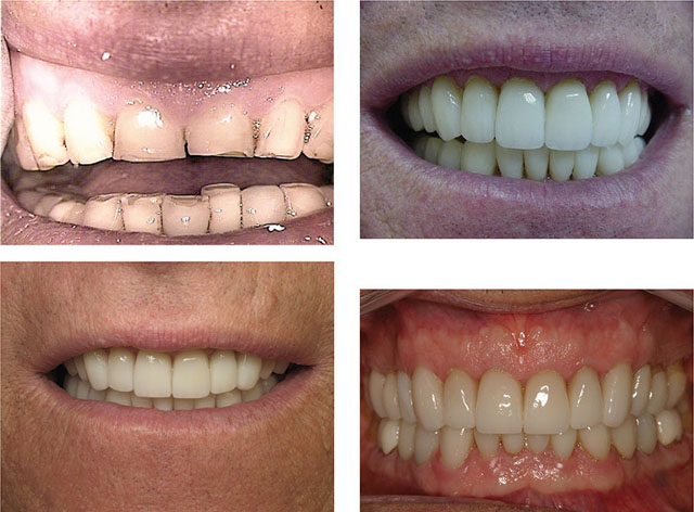 Photographs show patient's teeth which is with badly damaged occlusion dating from 1997, who is 20 years postoperatively, showing good results.
