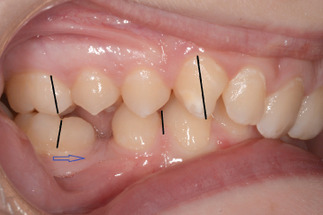 Photo showing Normal sagittal molar relation.