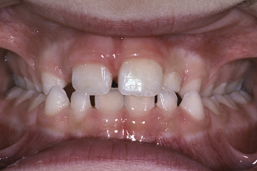 Photo showing Unilateral crossbite on the right side of the individual.